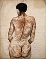 Back and buttocks of a woman Wellcome V0009967.jpg