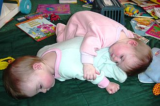 Multiple birth - Fraternal twin sisters taking a nap. Nonidentical twins, the most common kind of multiple birth among humans, occur in about 1 out of every 80 pregnancies.
