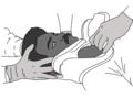 Cervical-collar-application.png