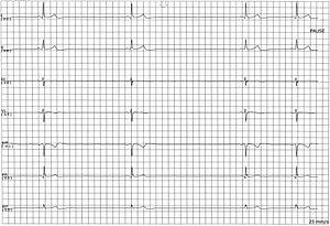 ECG Sinus Pause.jpg