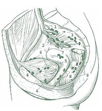 Internal iliac lymph nodes - Internal Iliac Nodes 1: Superior gluteal 2: Inferior gluteal 3: Sacral  Perivesical Lymph Nodes 4: Prevesicular 5: Postvesicular 6: Lateral vesicular 7: Parauterine 8: Paravaginal 9: Anorectal (pararectal)