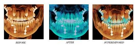 Dentista - Clínica dental Boca&Boca Málaga la Odontología