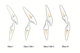 Occlusion (dentistry) - Incisor Relationship - based upon the position of the incisal edges of the lower teeth and the cingulum plateau of the maxillary central incisor's. (Institute of Dentistry, University of Aberdeen)