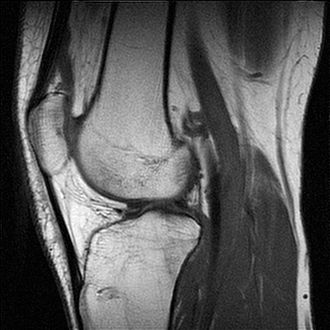False color - A grayscale MRI of a knee – different gray levels indicate different tissue types, requiring a trained eye.