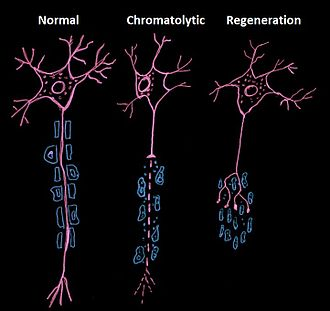 Chromatolysis - This drawing compares a normal neuron to one undergoing chromatolysis after axonal injury.  Regeneration after axonal injury may occur.