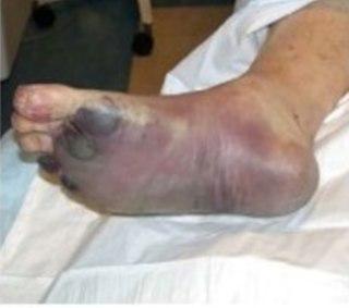 Septicemic plague Human disease