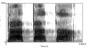 "Spectrogram of a male voice saying ""tatat..."