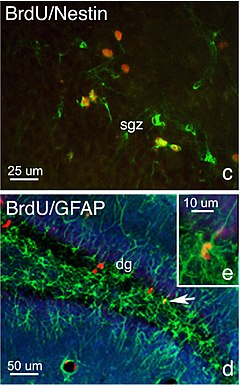 Overlooked Brain Cells May Have Leading >> Adult Neurogenesis Wikipedia