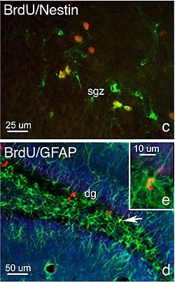 definition of neurogenesis