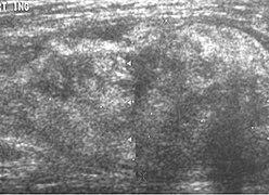 Lipoma - Wikipedia
