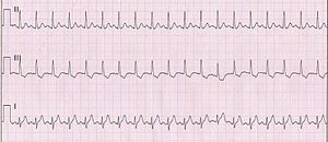 Sinus Tachycardia Unlabeled.jpg