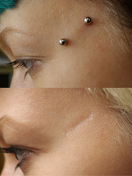 File:Surface piercing before and after.jpg