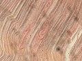 Trichinella spiralis (YPM IZ 093427).jpeg