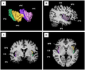Two-and three-dimensional images of the anterior and posterior insular cortices.png