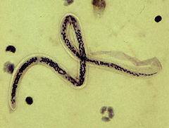 Microfilária