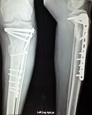 Foot and ankle surgery - Anterior and lateral view x-rays of fractured left leg with internal fixation after surgery