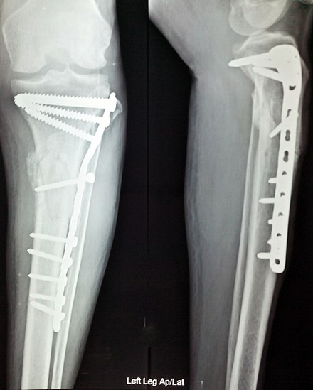 Anterior and lateral view x-rays of fractured left leg with internal fixation after surgery X ray internal fixation leg fracture.jpg