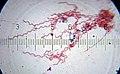 20100905 211652 Spirochetes.jpg