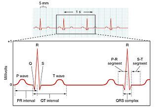 Depolarization - Electrocardiogram