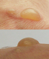 Blister from burns (combined).png