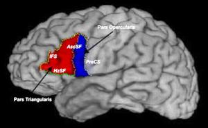 Lesión en la cabeza del lóbulo frontal derecho