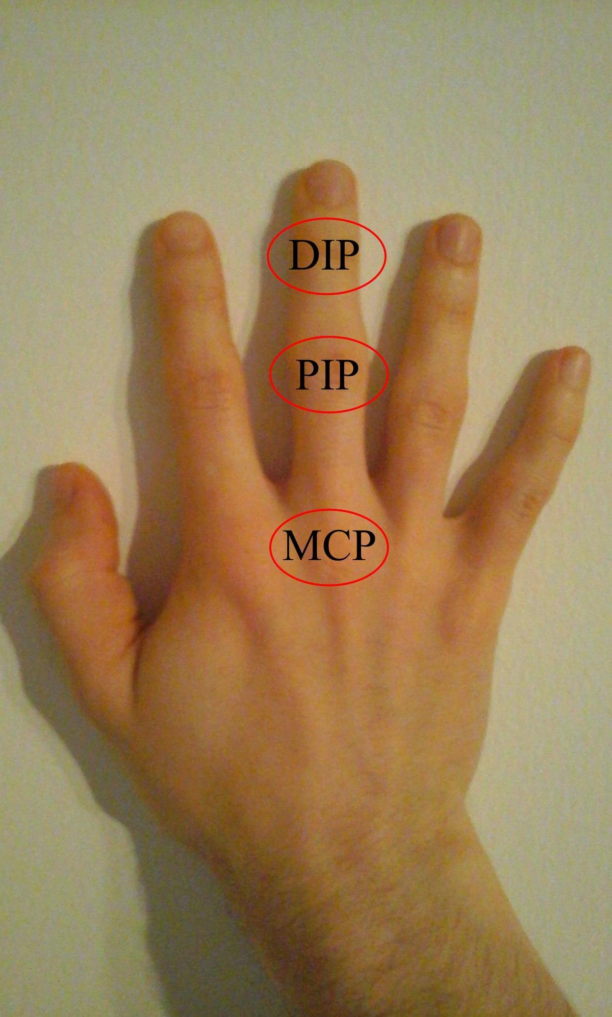 Kéztőalagút szindróma / Carpal tunnel szindróma