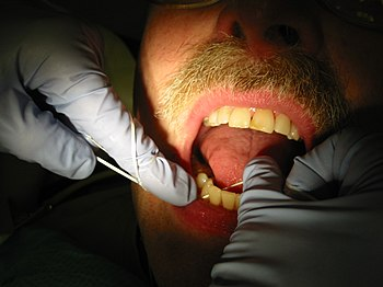 Dental hygienist flossing a patient's teeth du...