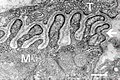 Electron micrograph of neuromuscular junction (cross-section).jpg