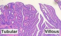 Histopathology of tubulovillous adenoma.jpg
