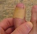 Ingrown-nail-treatment-by-band-aid.jpg