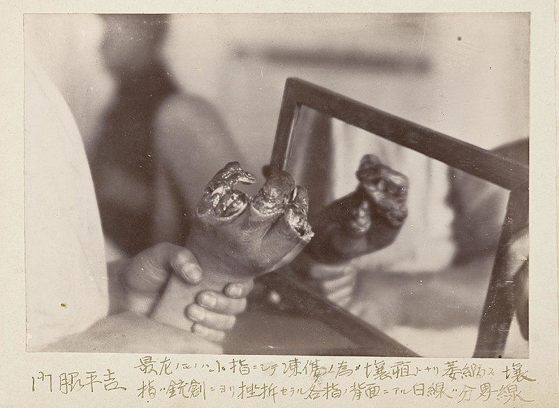 File:Kadoaki Heikichi tōshō no tame eso to nari ishukushi jūsō ni yori zasetsu sareta kaku yubi no haimen ni aru hakusen bunkaisen (8615809697).jpg