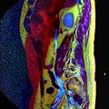 LSV MRI spondylolisthesis T1W T2W STIR 15.jpg