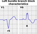 Left bundle branch block ECG characteristics.png
