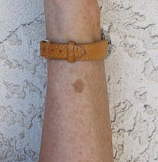 Liver spot on left forearm.JPG