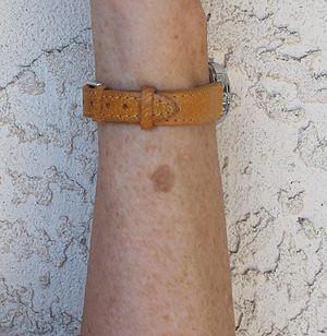 Liver spot on left forearm.JPG
