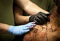 MPOTY 2012 treatment following suicide attack, Afghan National Policeman.jpg