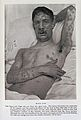 Man with smallpox Wellcome L0032952.jpg
