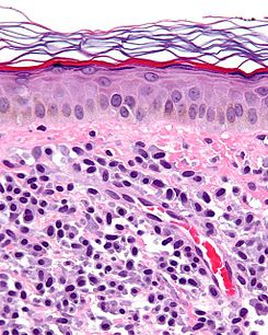 Mastocytosis - cropped - very high mag.jpg