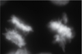Metaphase anaphase.png