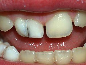 Denticin decidua  Wikipedia la enciclopedia libre