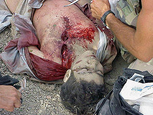 Omar Khadr - Two soldiers kneel over the wounded Khadr.
