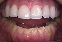 The erosion on the lower teeth was caused by bulimia. For comparison, the  upper teeth were restored with porcelain veneers.