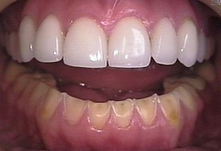 Acid erosion loss of tooth structure due to chemical dissolution by acids not of bacterial origin
