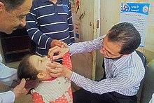 Uma criança recebendo gotas da vacina contra poliomielite na boca