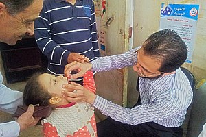 A child receiving drops of polio vaccine in her mouth