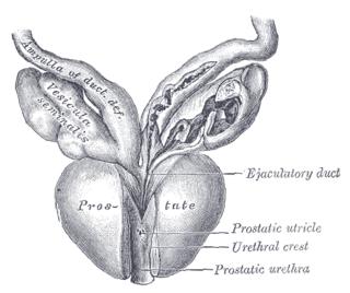 Posterior urethral valve Medical condition