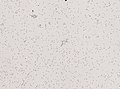 Wuchereria bancrofti (YPM IZ 093347).jpeg