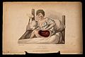A boy with a wounded thigh seated on a bed; a crutch to his Wellcome V0009660.jpg