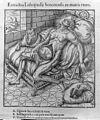 Albosius, 'Portentosum Lithopaedion' Wellcome L0029735.jpg