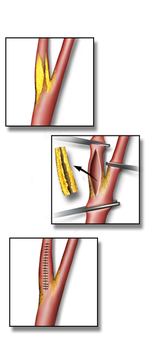 Carotid endarterectomy - Illustration depicting a Carotid Endarterectomy